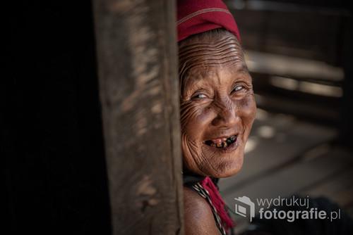 """Plemię Kayah, Birma. Kobiety Kayah noszą na nogach przedziwne """"motki"""" z impregnowanego żywicą łyka, a w uszy wkładają ciężkie kolczyki. Z tego powodu, potocznie nazywane są"""
