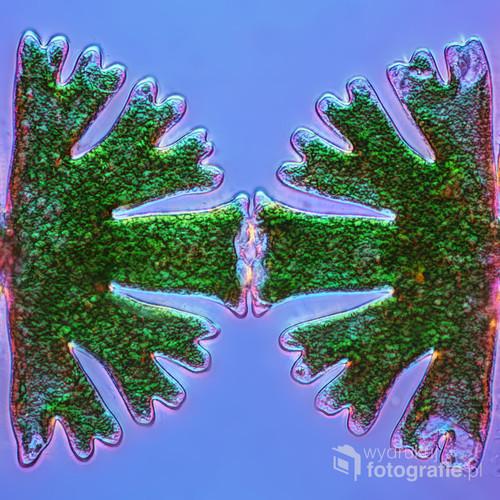 Ostatnia faza podziału komórek glonów z gatunku Micrasterias, powiększenie 100x.  Wyróżnione w konkursie ND Awards 2016